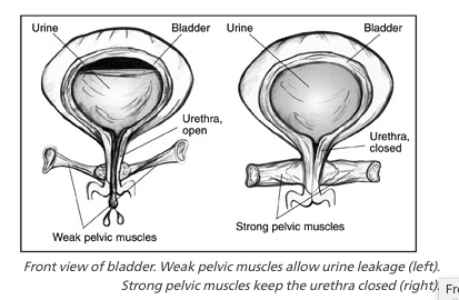 The difference between a strong and weakened pelvic floor muscle